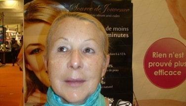Aprsè l'application des produits Jouvessence de PG Skincare France